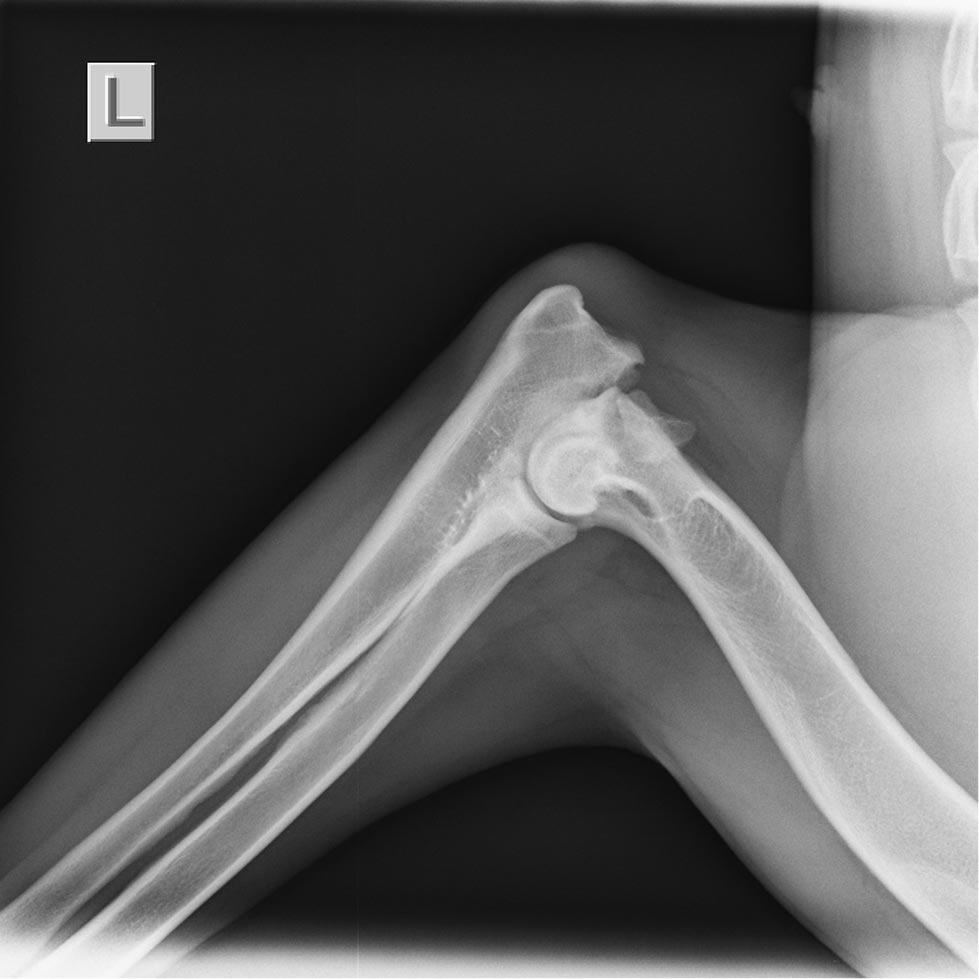 xray of the left elbow