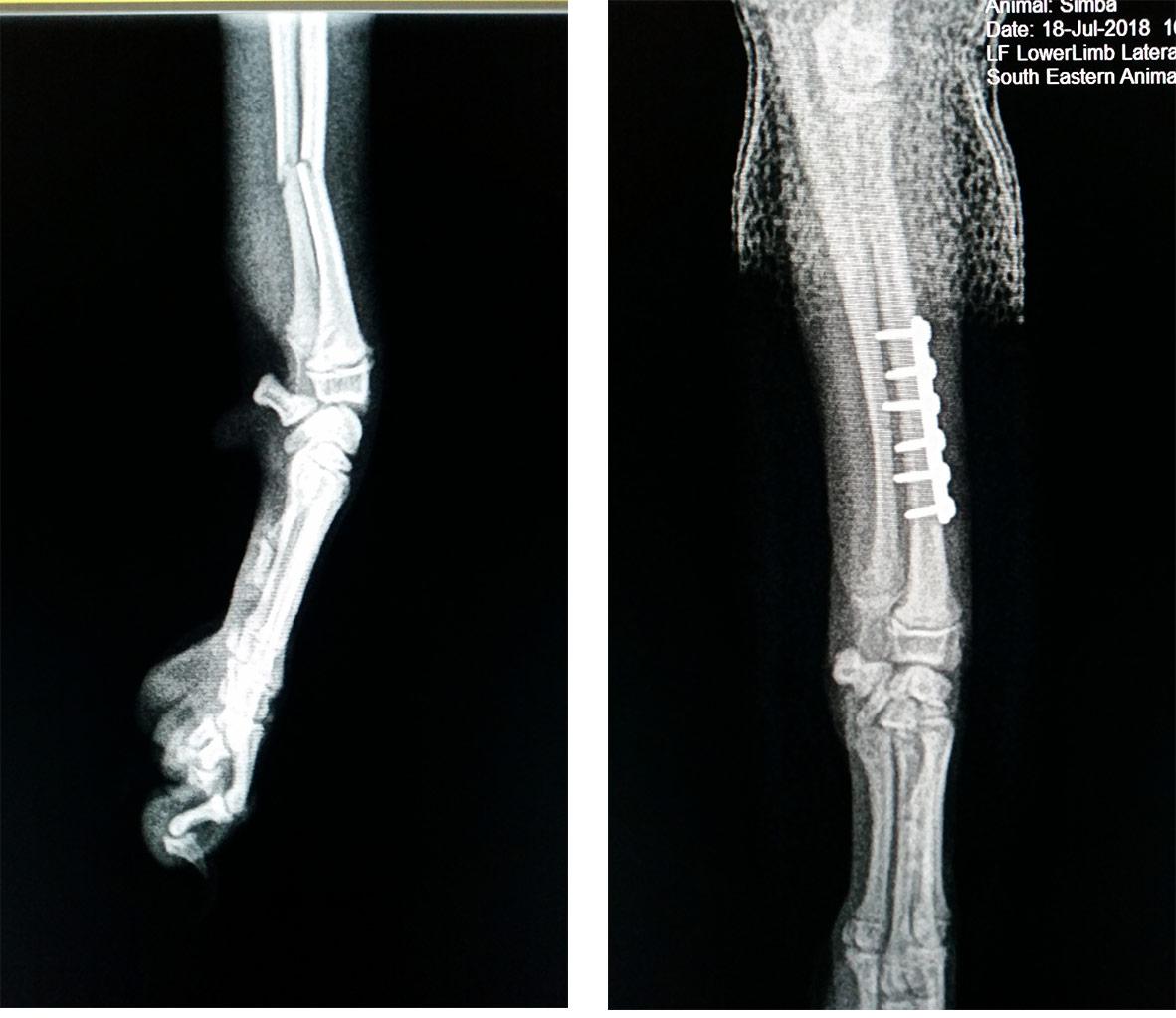 limb fracture